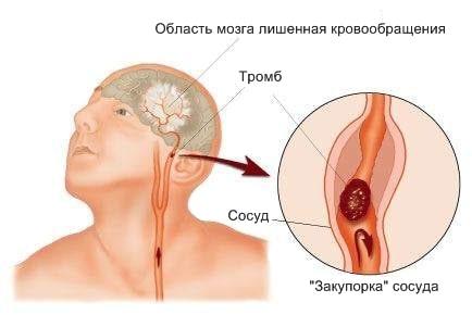 закупорка сонной артерии