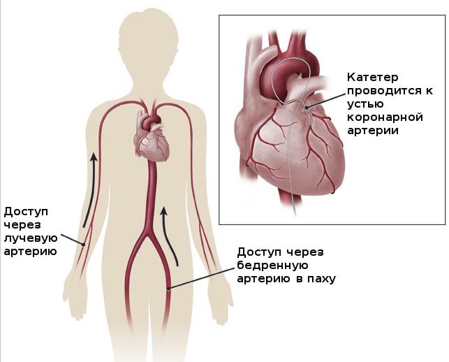 доступ при стентировании коронарных артерий